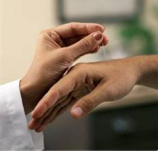 类风湿性关节炎的病理分期有哪些?86