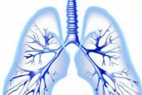 类风湿与肺是会感染的,一定要小心得肺炎72